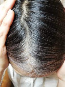 白髪染めキラリ